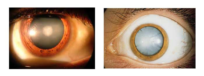 exemples de la cataracte